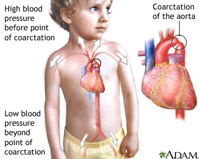 coarctation of aorta